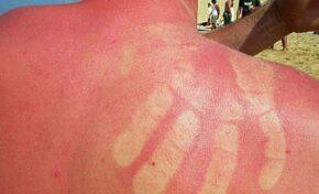 Не правете това, ако сте изгорели от слънцето